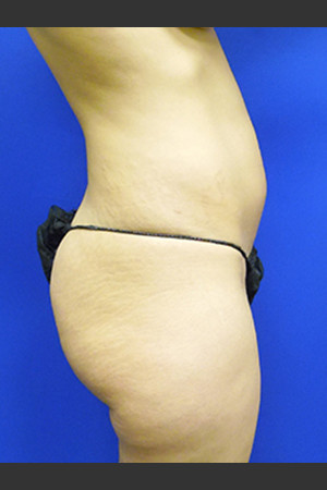 Before Photo for Brazilian Butt Lift Case #1   - Paul C. Dillon, MD - ZALEA Before & After