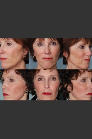 After Photo for Single treatment of fully ablative  Laser Resurfacing - Mark B. Taylor, M.D. - Prejuvenation