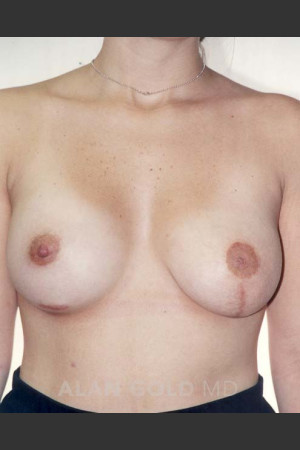 After Photo for Asymmetrical Breast 470   - Alan Gold MD - ZALEA Before & After