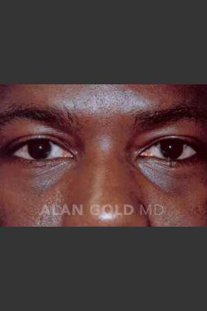 After Photo for Blepharoplasty 1027   - Alan Gold MD - ZALEA Before & After