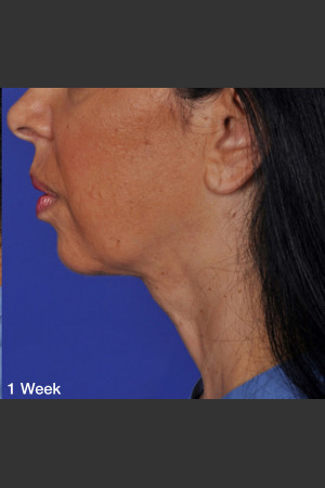 After Photo for ThermiTight Treatment - Barry E. DiBernardo, MD, FACS - Prejuvenation