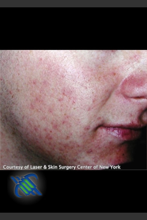 Before Photo for Treatment of Facial  Acne Scaring   - Roy G. Geronemus, M.D. - ZALEA Before & After