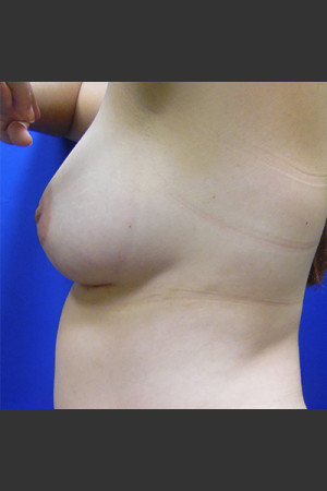 After Photo for Breast Augmentation Case #1   - Lawrence Bass MD - ZALEA Before & After