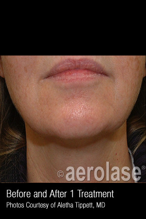 After Photo for Skin Tightening #347   - ZALEA Before & After