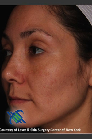 After Photo for Pigment Facial Skin Rejuvenation   - Roy G. Geronemus, M.D. - ZALEA Before & After