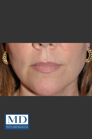 Before Photo for Lip Filler 135   - Lawrence Bass MD - ZALEA Before & After