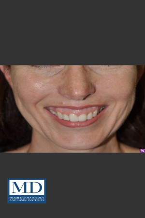 Before Photo for Neurotoxin Gummy Smile 128   - Jill S. Waibel, MD - ZALEA Before & After