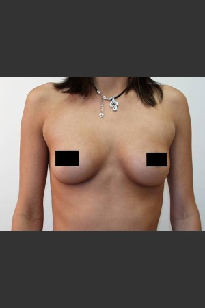 Before Photo for Breast Augmentation   - Braden C. Stridde, M.D. - ZALEA Before & After