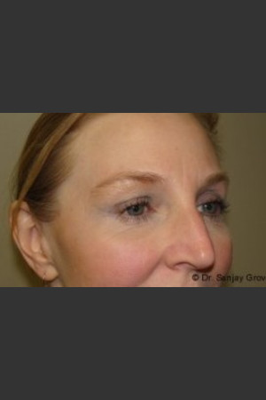 After Photo for Blepharoplasty 6307   - Sanjay Grover MD FACS - ZALEA Before & After