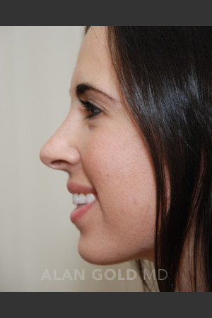 After Photo for Rhinoplasty 1669 Side View - Alan Gold MD - Prejuvenation