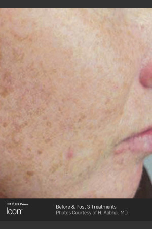 Before Photo for Skin Revitalization Before & After Photo   - ZALEA Before & After