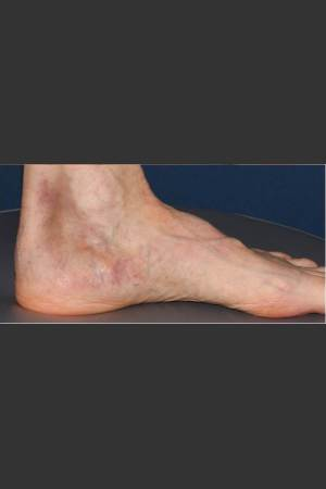 After Photo for Treatment of Pigmented Lesion on Foot   - Lawrence Bass MD - ZALEA Before & After
