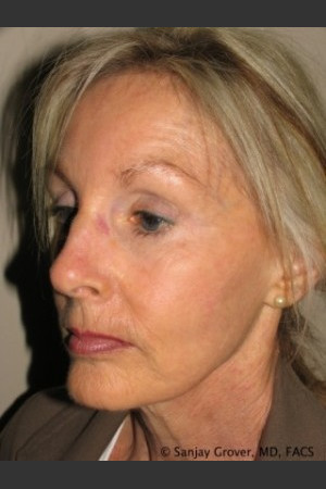 Before Photo for Facelift 6944   - Sanjay Grover MD FACS - ZALEA Before & After