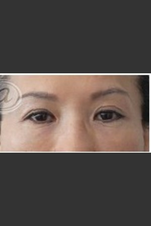 After Photo for Undereye Filler   - Annie Chiu, MD - ZALEA Before & After