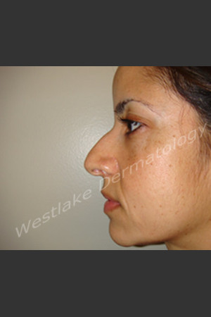 Before Photo for Rhinoplasty Treatment of Female Patient - Cameron Craven MD FACS - Prejuvenation
