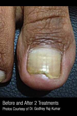 After Photo for Treatment of Nail Fungus #321   - ZALEA Before & After