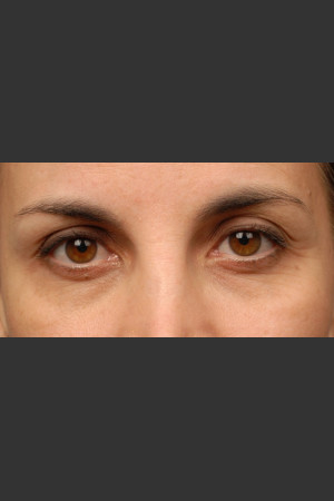 After Photo for 3DEEP Eye Wrinkle Reduction   - Lawrence Bass MD - ZALEA Before & After