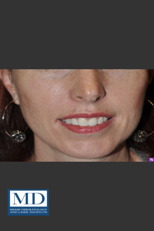 After Photo for Neurotoxin Gummy Smile 128   - Jill S. Waibel, MD - ZALEA Before & After