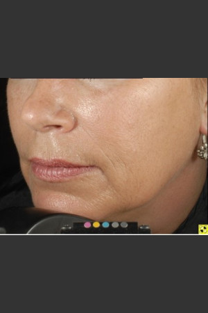 After Photo for Botox Dermal Fillers and Pigment Removal    - Brian D. Zelickson, M.D. - ZALEA Before & After