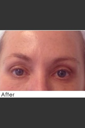 After Photo for Undereye Filler + Exilis Elite Radiofrequency Skin Tightening   - Annie Chiu, MD - ZALEA Before & After