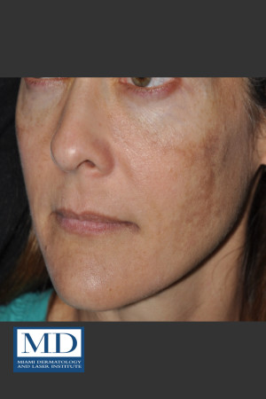 Before Photo for Melasma Face Treatment 118 - Jill S. Waibel, MD - Prejuvenation