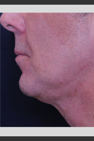 After Photo for Profound Contour Treatment of Neck   - ZALEA Before & After