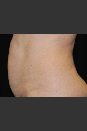 Before Photo for Body Contouring Treatment #122   - ZALEA Before & After