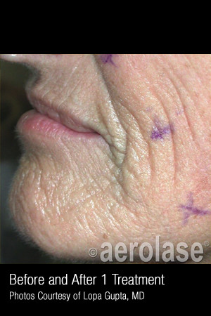 Before Photo for Treatment of Wrinkles, Tone and Texture #341   - ZALEA Before & After
