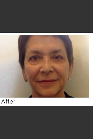After Photo for Radiesse and Restylane Filler Treatment   - Annie Chiu, MD - ZALEA Before & After
