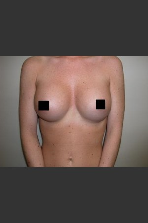After Photo for Breast Augmentation   - Lawrence Bass MD - ZALEA Before & After