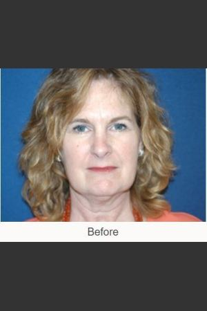 Before Photo for Facelift - Case #23 Details   - James N. Romanelli, MD, FACS - ZALEA Before & After