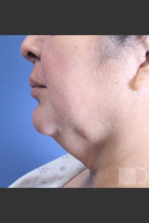 Before Photo for SmartLipo Liposuction of Lower Face   - Daniel Friedmann  - ZALEA Before & After