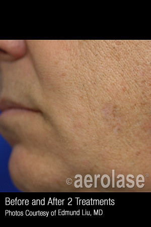 After Photo for Treatment of Facial Pigmentation #328 -  - Prejuvenation