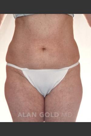 Before Photo for Liposuction 380   - Alan Gold MD - ZALEA Before & After