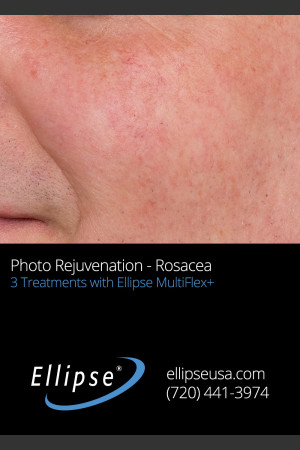 After Photo for Before and After 3 Treatments of Rosacea   - ZALEA Before & After