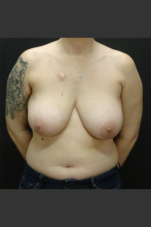 Before Photo for Breast Reconstruction Case #1   - Gallaher Plastic Surgery & Spa MD - ZALEA Before & After