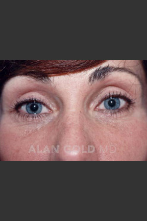 After Photo for Blepharoplasty 1014   - Alan Gold MD - ZALEA Before & After