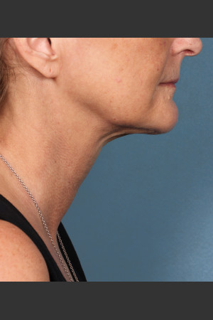 After Photo for Kybella Treatment 55 Year Old Female   - ZALEA Before & After