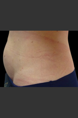 After Photo for Body Contouring Treatment #117 -  - Prejuvenation