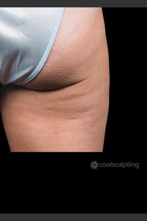 After Photo for CoolSculpting on Woman's Outer Thigh   - ZALEA Before & After