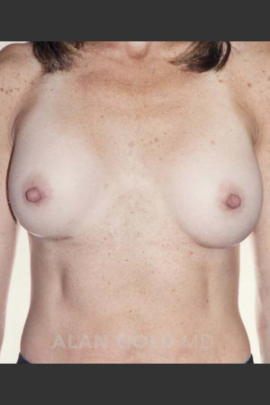 After Photo for Breast Augmentation 592 - Alan Gold MD - Prejuvenation