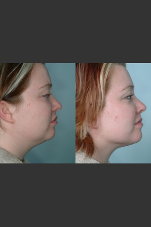Before Photo for Submental and arm localized liposuction   - Mark B. Taylor, M.D. - ZALEA Before & After