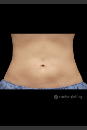 After Photo for CoolSculpting on Woman's Stomach   - ZALEA Before & After