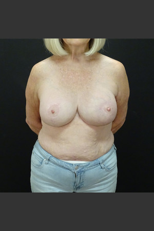 After Photo for Breast Augmentation with a Lift   - Gallaher Plastic Surgery & Spa MD - ZALEA Before & After