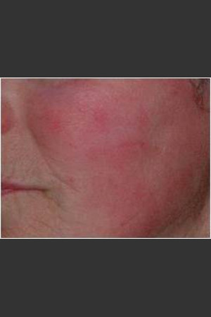 After Photo for IPL Rosacea Treatment #16   - Harvey H. Jay, M.D. - ZALEA Before & After