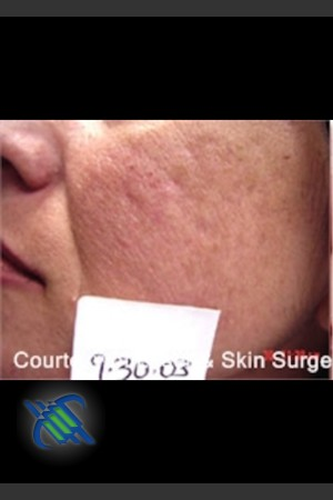 Before Photo for Treatment of Facial  Acne Scaring Left Side   - Roy G. Geronemus, M.D. - ZALEA Before & After