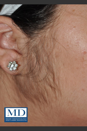 Before Photo for Laser Hair Removal 123 - Jill S. Waibel, MD - Prejuvenation