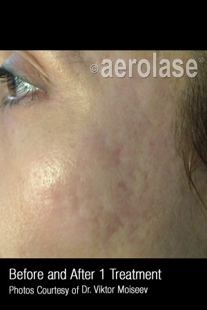 After Photo for Treatment of Acne Scars #308   - ZALEA Before & After