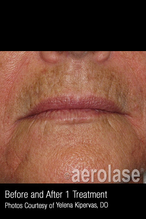 Before Photo for Treatment of Melasma #317   - ZALEA Before & After