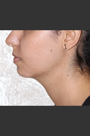 After Photo for Chin Augmentation - Bryan J. Correa, MD - Prejuvenation